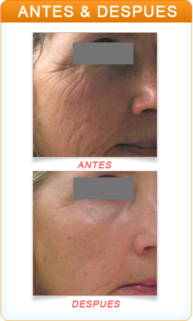 Dermapen - Buy HGH Safely From Us
